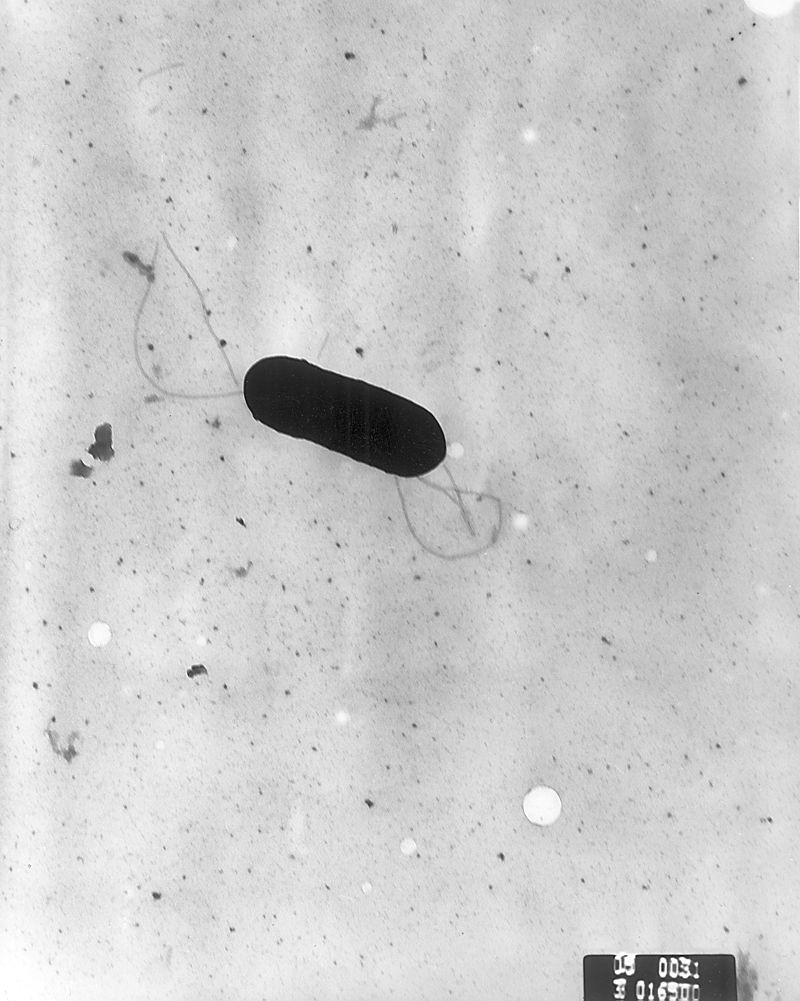 Listeria monocytogenes-wikipedia